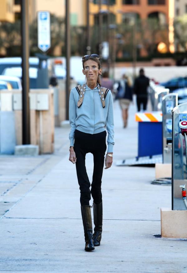 世界上最瘦的人