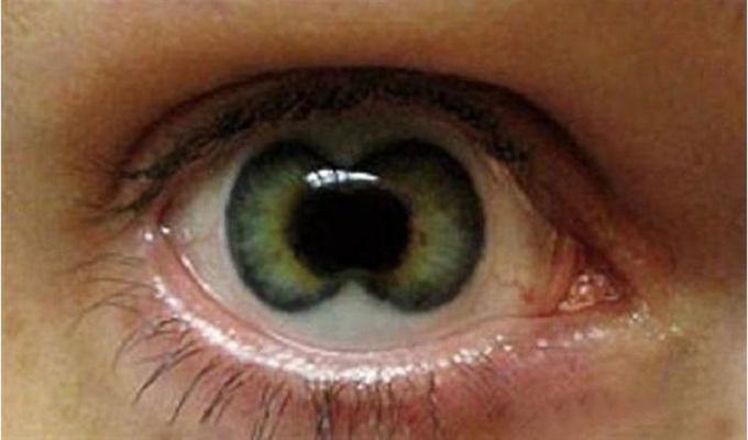 真正的重瞳是什么样子