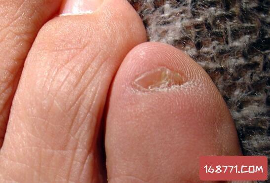 小脚趾甲两瓣是哪族人,血统纯正的汉族才会这样