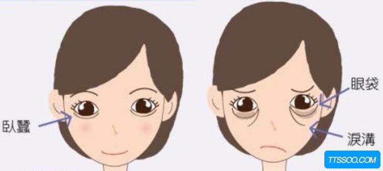 卧蚕和眼袋的区别,卧蚕丰润有弹性(眼袋松弛臃肿显老)