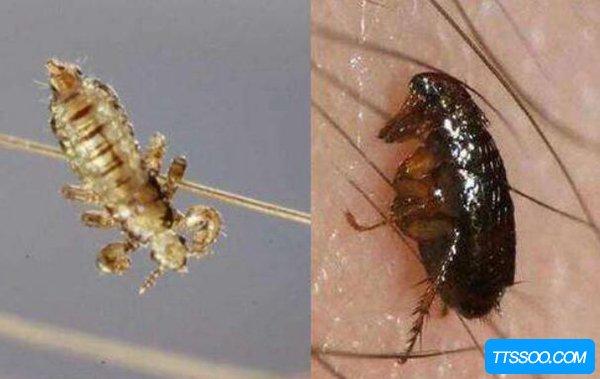 家里有好多虱子怎么办?应该如何更好处理虱子
