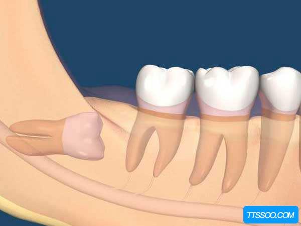 智齿拔掉后有个洞怎么办?拔牙之后应该注意什么