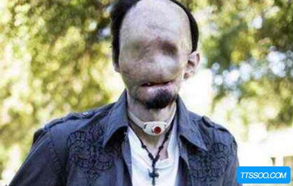 无脸症是什么?世界上真的有没有脸的人吗