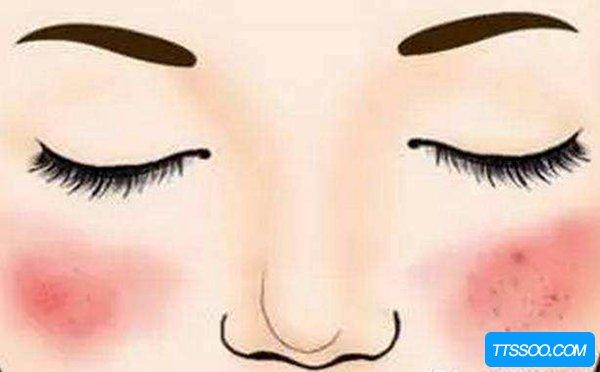 脸上有红血丝怎么办?如何才能有效去除红血丝